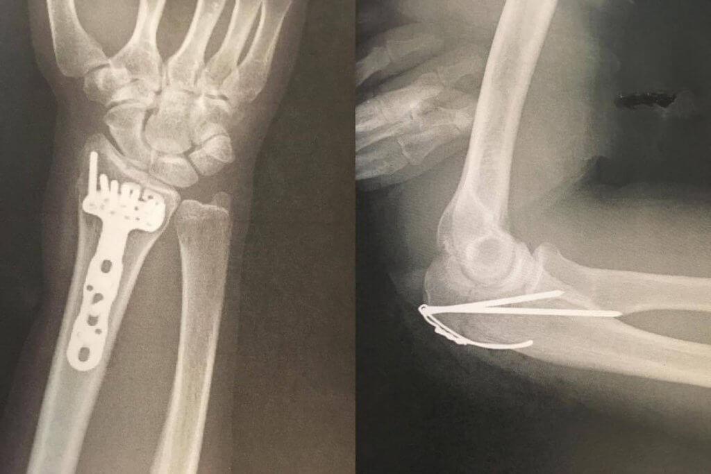 骨折のレントゲン写真